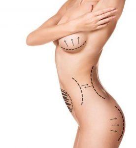 vücut estetiği ankara